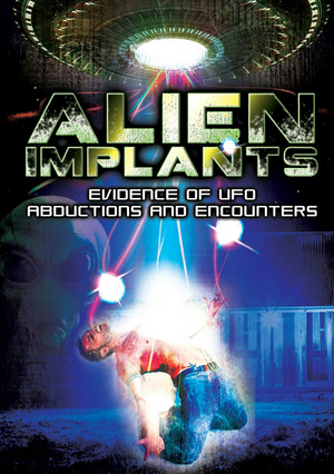 Alien Implants: Evidence of UFO Abductions and Encounters (Retail Only)